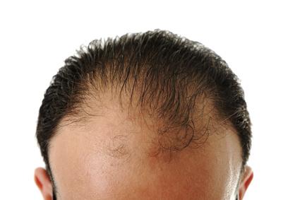 薄毛対策の比較